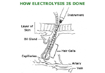 Electrolysis Hair Removal Sydney
